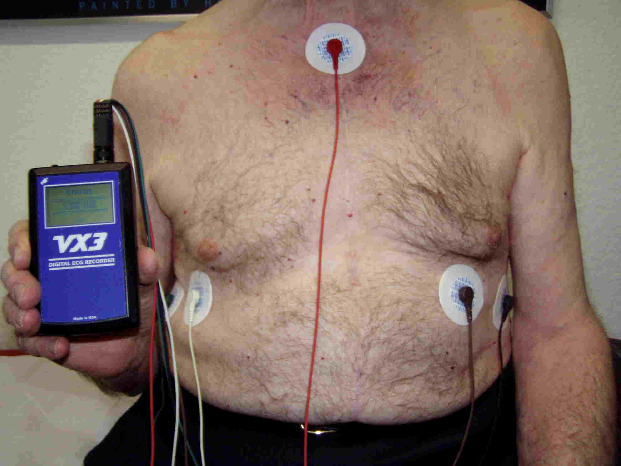 LZ EKG Patient